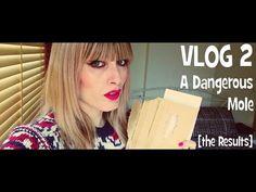 Vlog #2 A Dangerous Mole [The Results] | MICHELA ismyname ❤️