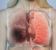 Top Healing Foods That Fight Lung Cancer Home Remedy For Headache, Headache Remedies, Home Remedies, Natural Remedies, What Causes Lung Cancer, Smoking Effects, Thing 1, Cancer Awareness, Healthy Life