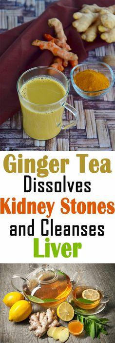 Ginger Tea Dissolves Kidney Stones And Cleanse Liver #liver #gingertea