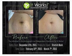 Luxurious skin hydration that minimizes the appearance of stretch marks, fine lines, & skin scarring. Buy It Works Stretch Mark Cream discount price. Stretch Marks On Thighs, Prevent Stretch Marks, Stretch Mark Cream, Stretch Mark Remedies, Stretch Mark Removal, It Works Products, Crazy Wrap Thing, After Baby, Getting Pregnant