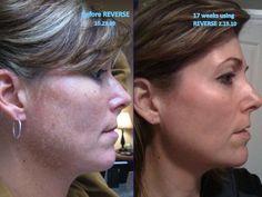 Reverse skin care for sun damage, and melasma. rodan-and-fields-anti-aging. Interested in reversing your skin? summerc.myrandf.com