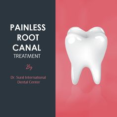 Who doesn't want smiles just like our favorite film stars? If you are one amongst them then come to Dr. Sunil International Dental Clinic in Bangkok for painless Root Canal Treatment. Root Canal Dentist, Root Canal Treatment, Dental Cosmetics, Dental Center, Teeth Care, Bangkok, Clinic, Thailand, Stars