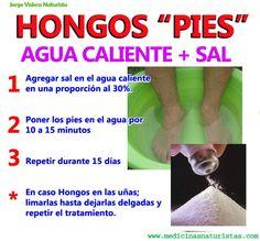 Remedios naturales para combatir hongos en los pies y uñas