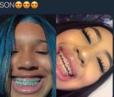 Cute Girls With Braces, Cute Braces Colors, Dental Braces, Teeth Braces, Dental Care, Braces And Glasses, Braces Retainer, Braces Tips, Getting Braces