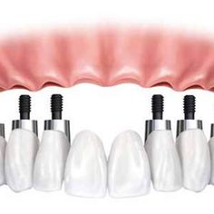 Dental Implant Cost Los Angeles: A cost of dental implants can vary from $ 1250…