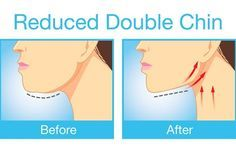 The Best Exercises For Getting Rid Of That Unwanted Double Chin and Neck Fat - http://nifyhealth.com/the-best-exercises-for-getting-rid-of-that-unwanted-double-chin-and-neck-fat/