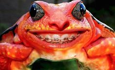 frog orthodontics/ braces www. Dental Braces, Dental Care, Oral Health, Dental Health, Orthodontic Humor, Local Dentist, Healthy Teeth, Teeth Cleaning, Orthodontics
