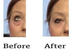 Where Can I Buy Jeunesse Instantly Ageless Eye Cream ? Come to Our Official Website and You Could Buy Best Jeunesse Instantly Ageless Anti Aging Eye Cream, Pure Beauty, Beauty Skin, Ageless Cream, Skin Care Cream, Wrinkle Remover, Anti Aging Serum, Contouring And Highlighting, Skin Care Regimen, Eye Circles