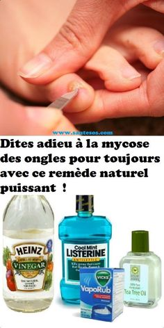 Say goodbye to nail fungus forever with this powerful natural cure Listerine, Uses For Vicks, Vicks Vaporub Uses, How To Stop Coughing, Sinus Congestion, Body Challenge, Nail Fungus, Anti Cellulite, Hair Loss Treatment