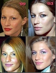 6 photos of Gisele Bundchen before and after plastic surgery. The 2 types of cosmetic surgery she's had include: nose job and breast implants. Gisele Bundchen is a 39 year old. Botox Before And After, Celebrities Before And After, Cool Skin Tone, Good Skin, Celebrity Plastic Surgery, Cool Hair Color, Hair Colors, Kardashian, Your Hair