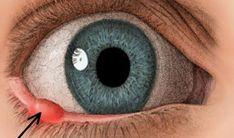 Jačmeň v oku. Ukážeme Vám, ako ho vyliečiť - Báječný lekár