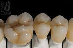 Molar Dental Art, Dental Teeth, Dental Photos, Porcelain Crowns, Dental Aesthetics, Dental Anatomy, Dental Technician, Dental Crowns, Perfect Smile