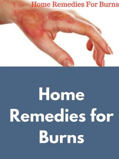 Home Remedies for Burns Home Remedies For Burns, Home Health Remedies, Natural Health Remedies, Natural Cures, Herbal Remedies, Health And Wellness, Health Guru, Skin Burns, Natural Teething Remedies