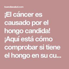 ¡El cáncer es causado por el hongo candida! ¡Aquí está cómo comprobar si tiene el hongo en su cuerpo! - Buen Dia Salud