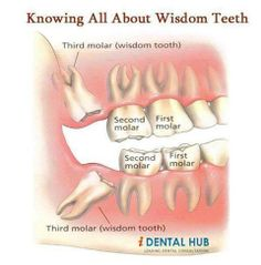 Knowing All About Wisdom Teeth