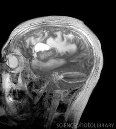 Brain cancer. Sagittal magnetic resonance imaging (MRI) scan through the head of a 48 year old male patient with a glioblastoma (white), with surrounding oedema (fluid)