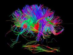 The NIH Human Connectome five-year project aims to chart the brain's major circuits.