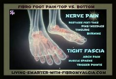 Fibromyalgia foot pain 26 bones in our feet! Small tiny injuries have caused me a fibro flare. Fibromyalgia Pain, Chronic Migraines, Chronic Illness, Chronic Pain, Fibromyalgia Syndrome, Ankylosing Spondylitis, Psoriatic Arthritis, Nerve Pain, Chronic Fatigue Syndrome