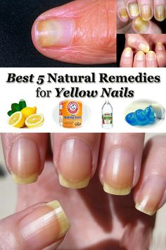 Because of smoking or using too much nail polish your nails can get a yellowish colour. There are natural remedies for yellow nails and below you can find 5 of them. Lemons You have two options: either you rub your nails with half of lemon or you soak your nails in water mixed with lemon …