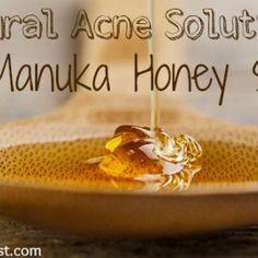 Natural Acne Solutions- The Manuka Honey Secret