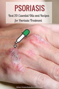 What Are The Best Essential Oils for Psoriasis And What Is The Best Psoriasis Essential Oil Recipe? The best essential oils for Psoriasis Home Remedies For Warts, Warts Remedy, Psoriasis Remedies, Psoriasis Scalp, Herbal Remedies, Psoriasis Symptoms, Psoriasis Cream, Plaque Psoriasis, Natural Remedies