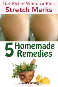 5 homemade remedies for get rid of white or pink stretch marks White Stretch Marks, Prevent Stretch Marks, Stretch Mark Remedies, Stretch Mark Removal, Best Skin Care Routine, Skin Care Tips, Strech Marks On Thighs, Get Rid Of Pores, Overnight Acne Remedies