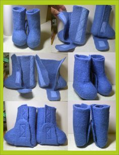 Velcro felt shoes for children with clubfoot at the brace