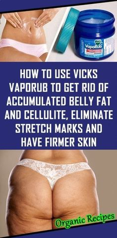 How To Use Vicks VapoRub To Get Rid Of Accumulated Belly Fat And Cellulite, Eliminate Stretch Marks And Have Firmer Skin - NZ Holistic Health Health Tips For Women, Health Advice, Health And Beauty, Health Care, Vicks Vaporub, Congested Nose, Uses For Vicks, Chest Congestion, Sinus Congestion