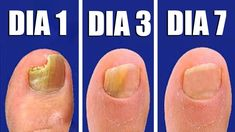 2532 Best Ongles images in 2020 Health Remedies, Home Remedies, Water Based Nail Polish, Listerine, Nail Fungus, Natural Medicine, Fungi, Pedicure, Health Tips