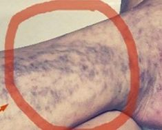 EVERYONE HAS THIS MIRACLE CURE FOR VARICOSE VEINS AT HOME, BUT MANY PEOPLE DON'T KNOW ABOUT IT!
