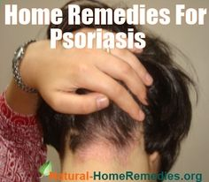 Psoriasis Free - Home Remedies for Psoriasis - Professors Predicted I Would Die With Psoriasis. But Contrarily to their Prediction, I Cured Psoriasis Easily, Permanently In Just 3 Days. Ill Show You!