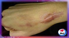 Remedios caseros para tratar las cicatrices queloides