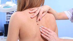 Näihin kohtiin ihosyöpä iskee miehillä ja naisilla – 5 yleisintä aluetta kehossa