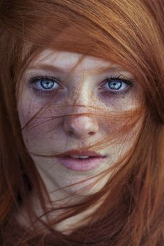 Love Freckles!