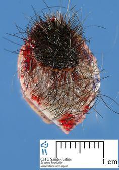 Excised section of scalp with nodular melanoma.
