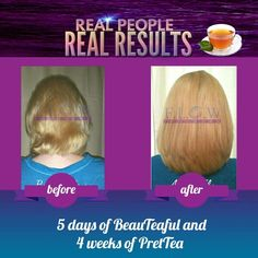 For #healthy #longer #fuller #hair #supplements click www.madam.myflowindustry.com