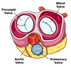 21 Best Tricuspid Stenosis images | Tricuspid valve, Heart ...