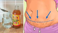 Diabetic Breakfast, Diabetic Snacks, Breakfast Recipes, Apple Cider Vinegar Remedies, Check Up, Detoxify Your Body, Diabetes Remedies, Medical Prescription, Smoothie Diet