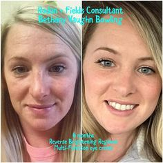 Wow look at fellow consultant Bethany's R+F results! Amazing! #lifechangingskincare