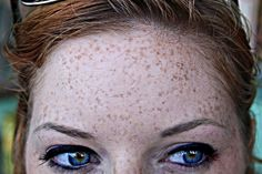 Freckle forehead    Ashley says that the freckles on my forehead make a kitty