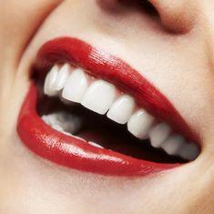 5 Ways To Get Whiter-Brighter Teeth