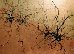 Neuroscience _Greg Dunn ink dying of neurons?