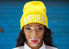 Vitiligo sufferer Chantelle Brown-Young lands spot on America's Next Top Model