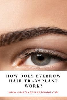 Can you transplant hair into your eyebrows? Eyebrow Hair Transplant, Eyebrow Hair Growth, Fue Hair Transplant, Hair Growth Cycle, Hair Growth Oil, Aesthetic Dermatology, Hair Growth Treatment, Lip Fillers, Hair Restoration