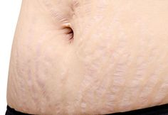 Hamilelikte karında çatlak oluşumu anne adayının cilt yapısıyla alakalıdır. Genellikle hassas ciltler çatlak oluşumuna daha müsaittir. Eğer cildiniz esnekse endişe duymanızı gerektirecek bir şey...