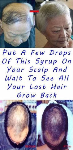 Put A Few Drops Of This Syrup On Your Scalp And Wait To See All Your Lost Hair Grow Back…Awesome -
