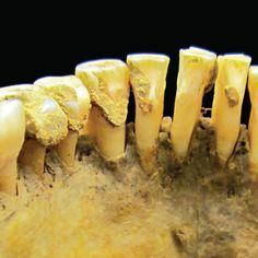 DENTAL FACT: Plaque buildup on your teeth can fossilize while you're still alive! JUST ANOTHER REASON TO GIVE US A CALL!!!!