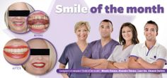 Smile of the Month - January treatment Dental, Competition, Medical, Tours, January, Smile Makeover, Grief, Medicine, Teeth