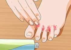 "Image titled Cure Toenail Fungus with Vinegar Step – "".Designed To Deal With Even The Nastiest Toe & Nail Fungus"" Toenail Fungus Remedies, Toenail Fungus Treatment, Circadian Rhythm Sleep Disorder, Home Remedies For Snoring, Toe Fungus, Snoring Solutions, Fungal Infection, Sleep Apnea, Tela"