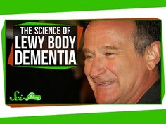 By current estimates, 1.4 million Americans are affected with Lewy Body Dementia (LBD). Robin Williams, the famous actor and comedian, was apparently among